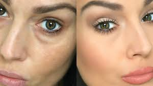 how to conceal under eye circles bags