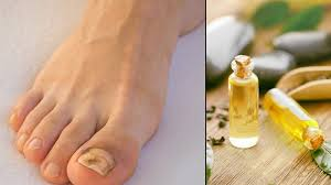 10 remes to fight toenail fungus at