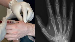 Everything You Need To Know Before Getting An RFID Implant