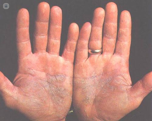 """Image result for Terapia convencional en psoriasis en la era de la terapia biológica"""""""