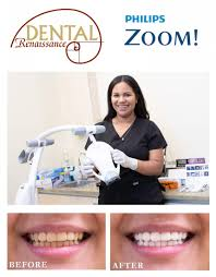 zoom whitening forest hills ny teeth