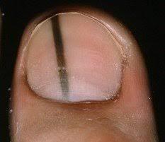 signs of toenail melanoma