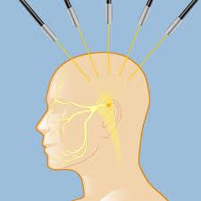 trigeminal neuralgia the