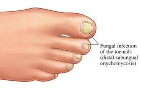 toenail fungus symptoms fungal