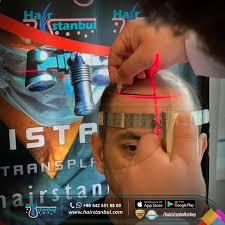 hair transplant turkey istanbul