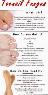 how to get rid of toenail fungus what