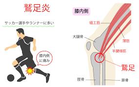 鵞足炎の解消・予防に必要な情報を公開するよ|~リハ事典+~ リハビリ(理学療法)の総合コンテンツ