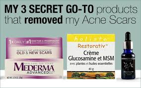 acne scar removal a must read if you