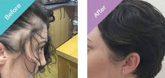 female hair transplant in turkey