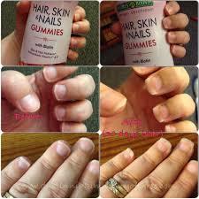 it works hair skin nails reviews galhairs