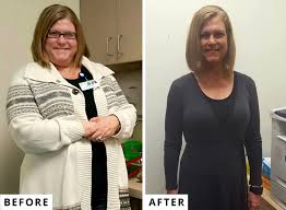 weight loss surgery testimonials
