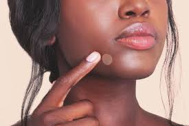 pimples on lips dermatologist shares