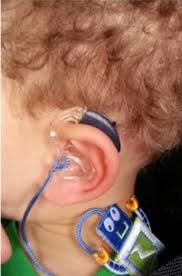 pin on wearing it well hearing aids