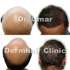 how to get the best hair restoration in