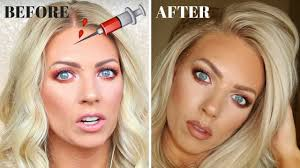 botox my experience before after