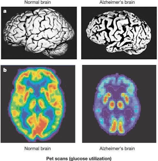 """alzheimer typ 3 diabetes ile ilgili görsel sonucu"""""""