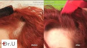 video about traction alopecia