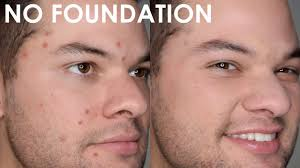 pimple with makeup for men and women