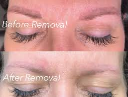 permanent makeup removal color