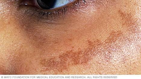 Image result for melasma on face free images