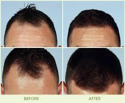 neograft hair transplantation system