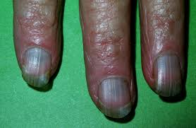 toenail discoloration 6 potential