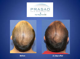 acell prp hair rescue in only 21 days