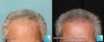 neograft hair restoration moy
