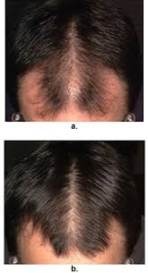 male androgenetic alopecia endotext