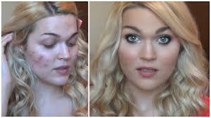 acne coverage foundation routine