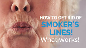 how to remove smoker s lines update