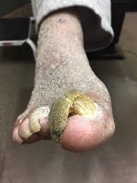 toenail fungus specialist hagerstown