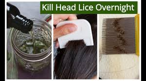 hair oil for lice nits removal