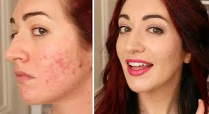cover acne scars without aggravating skin
