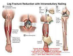 nail intramedullary reduction