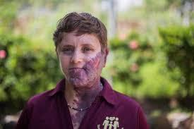 giant birthmark is cruelly branded