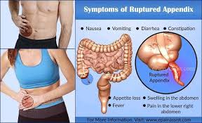 APPENDIX TOTAL REMOVAL ( you shall not... - Natural Care and Disease Remedy  | Facebook