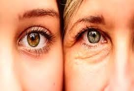 محفاظت از پوست دور چشم با این 5 اصل