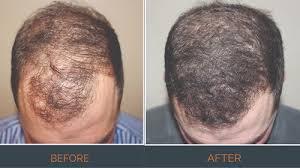 hair transplants ta neograft hair