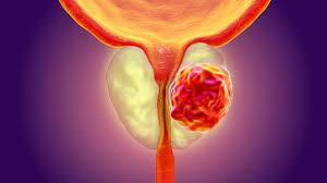 Prostate Cancer | ICV