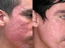 makeup for acne scars face saubhaya