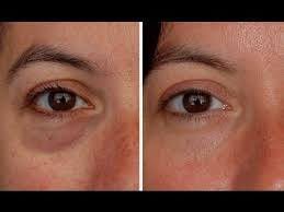 hide dark circles under eyes makeup