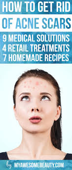 how to get rid of acne scars fast the