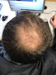 Pattern hair loss - Wikipedia