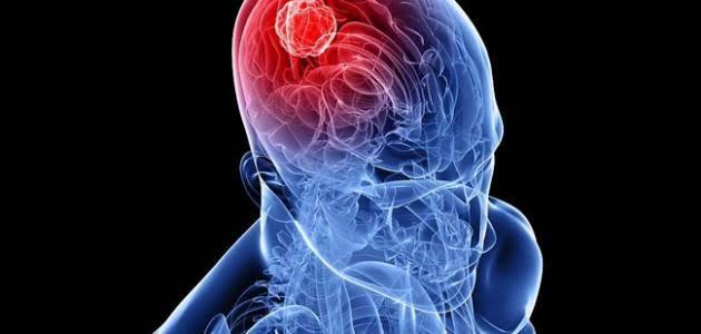 """نتيجة بحث الصور عن خلايا الجلد .. أحدث طرق علاج سرطان المخ؟!"""""""