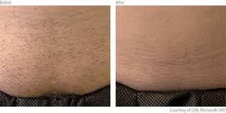lumenis laser hair removal in
