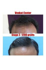 hair transplant results before