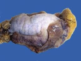 CASO CLÍNICO Carcinoma embrionario puro de testículo.  Presentación de un caso y revisión de la literatura