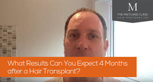 hair transplant at 4 months post op