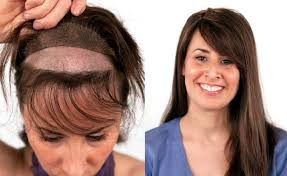 non surgical hair transplant for women